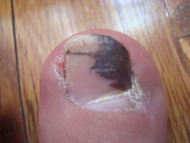 Toenail Fungus Pictures Pictures, Images ... - Photobucket