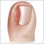 surgical treatment for toenail fungus