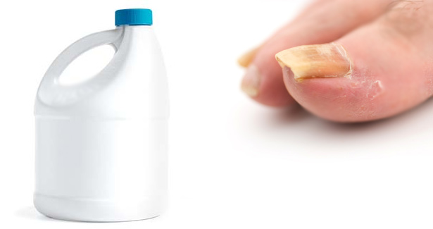 Does Bleach Kill Nail Fungus?