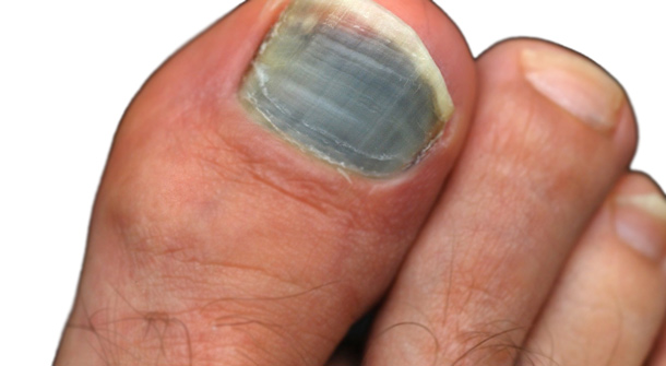 Black Toenail Fungus Symptoms