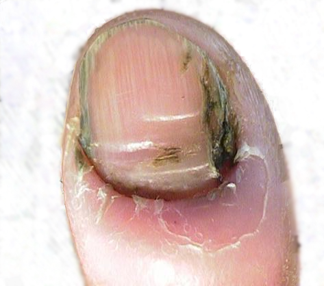 Types of Fungus Infections of the Toenail ...
