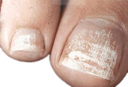 5 Types of Skin Fungus | HowStuffWorks