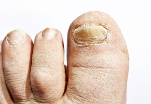toenail-fungus-treatment-prescription-drugs