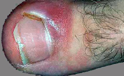 Nail Fungus Pictures - Paranoychia
