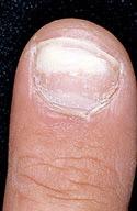 Fungus Gallery - Black Toenail and Fingernail